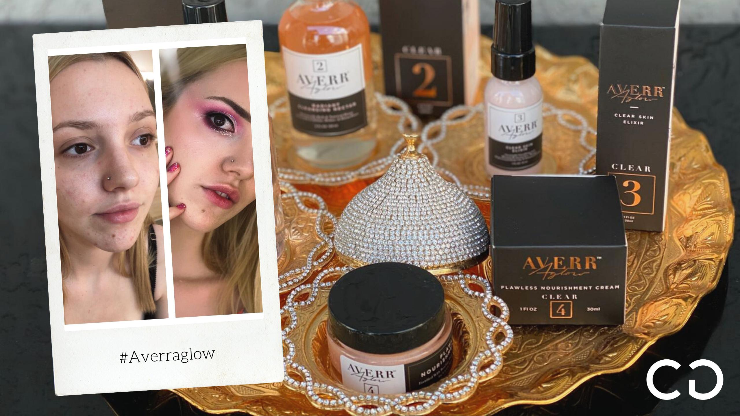 Makeup & Autoestima: probamos Averraglow para pieles con Acné